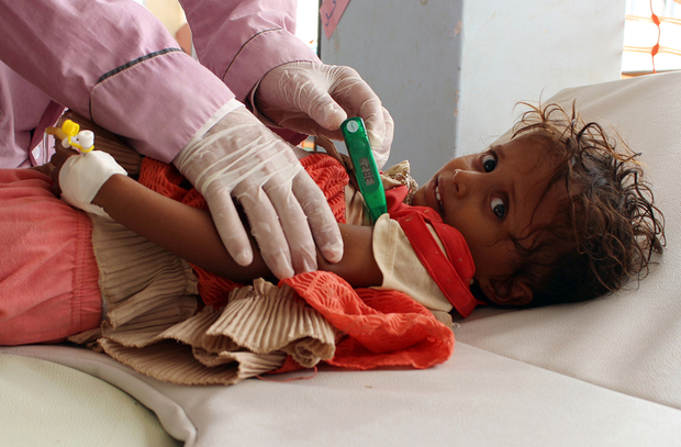 A Yemeni child suspected of being infected with cholera is checked by a doctor at a makeshift hospital operated by Doctors Without Borders (MSF) in the northern district of Abs in Yemen's Hajjah province , on July 16, 2017. The country has also been hit by a cholera outbreak that has killed more than 1,600 people and left some 270,000 infected. / AFP PHOTO / STRINGER