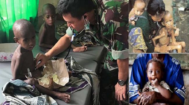 Tokoh Muda Muhammadiyah Soroti Kasus Busung Lapar di Papua