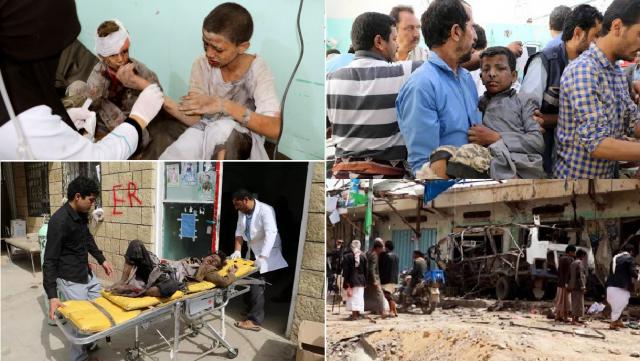 Koalisi Saudi Serang Bus Sekolah, Puluhan Anak Yaman Tewas dan Terluka